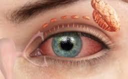 Ghiandola lacrimale principale e vie di deflusso lacrimali.