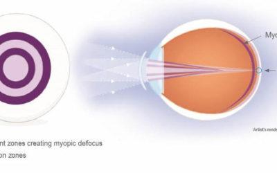 Oltre la semplice correzione della miopia