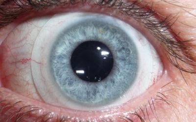 Cosa sono le lenti a contatto sclerali