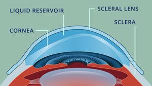 In azzurro la riserva di soluzione fisiologica che permette di correggere otticamente le distorsioni corneali.