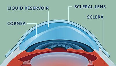 Quando sono indicate le lenti sclerali?