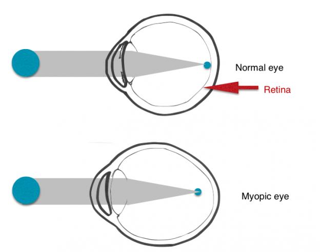 Cosa sappiamo della progressione miopica